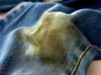 пятно от травы на одежде